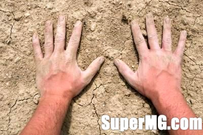 Фото: Що робити, якщо тріскається шкіра на пальцях-