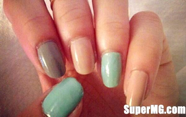 Фото: Як лікувати задирки на пальцях: неприємні дрібниці