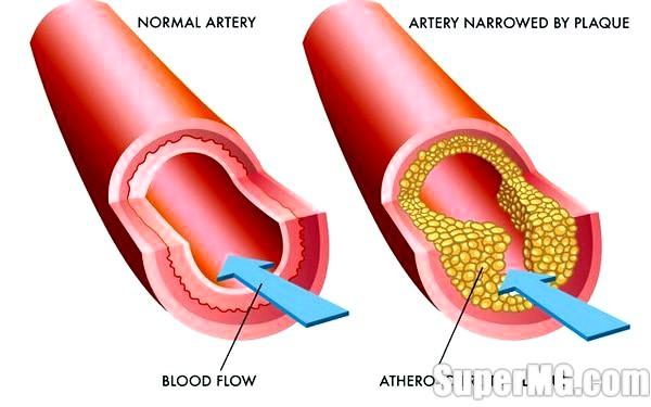 Фото: Як знизити холестерин без таблеток: чисті судини